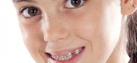 العلاج التقويمي للبروز الزائد للأسنان العلوية