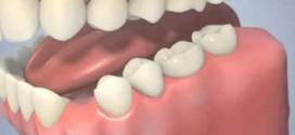 الحشوة اللاصقة حل وقائي لتسوس أسنان الأطفال