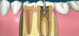 إجراءات علاج الأقنية الجذرية Root Canal Treatment Procedure