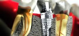 زراعة الأسنان Dental Implantology
