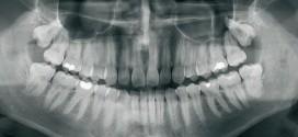 أشعة الأسنان Dental Radiology