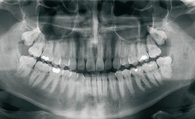 dental_radiology