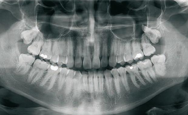 نتيجة بحث الصور عن التصوير بالأشعة السينية