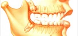 ضروس العقل المدفونة Impacted wisdom teeth